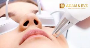 revlite-laser-treatment