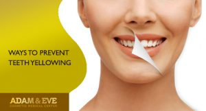 ways to prevent teeth yellowing