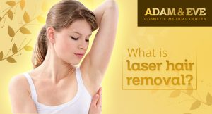 what-is-laser-hair-removal