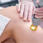 Why You Should Get a Laser Hair Removal